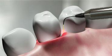 Laser Dentist Service