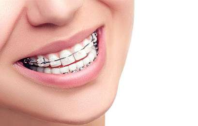 Dental Braces Service