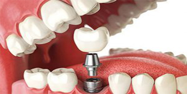 Dental Implants Service