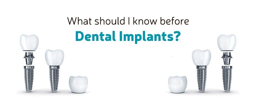 What should I know before Dental Implants?