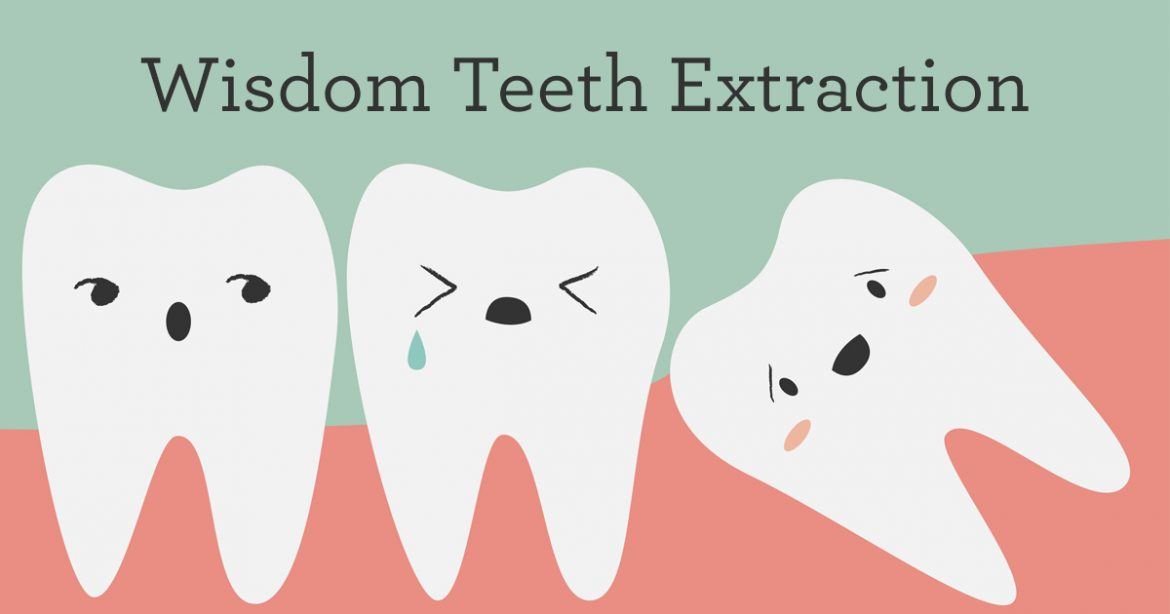 Wisdom Teeth Extract